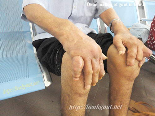Bí quyết điều trị của bệnh nhân Gout kèm theo suy gan, suy thận