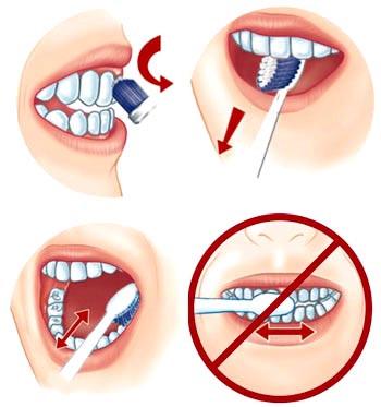 Về việc tẩy trắng răng ai cần, ai không?