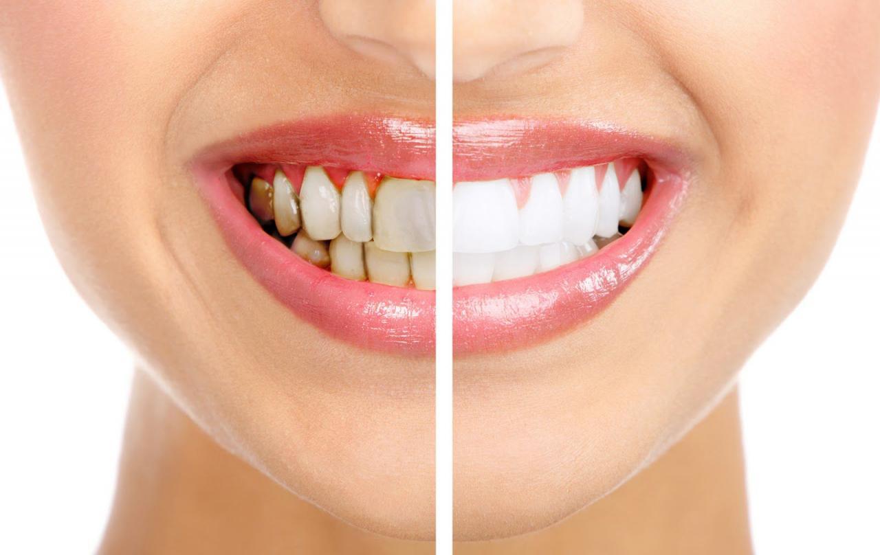 Có những phương pháp tẩy trắng răng gì?